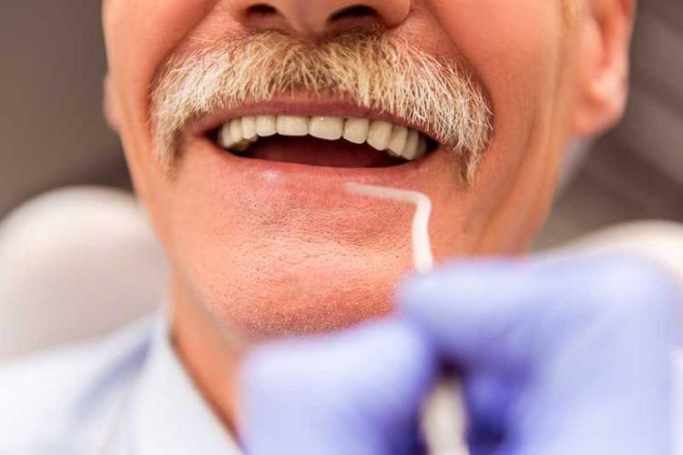Dental Implants For The Elderly