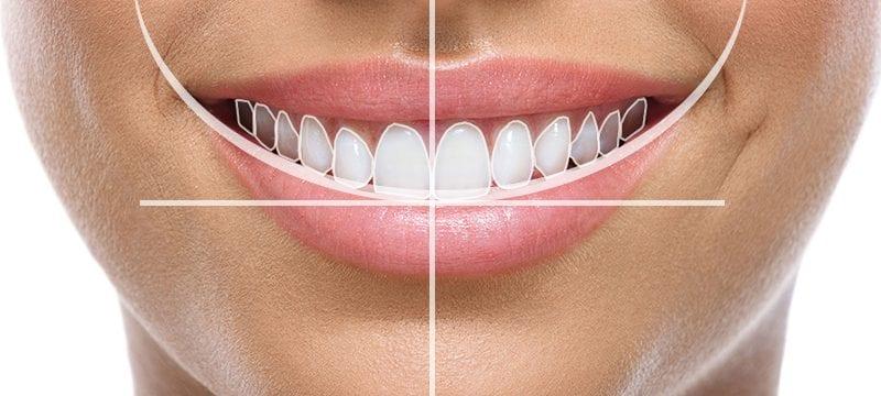 CEREC Digital Dentistry Planning