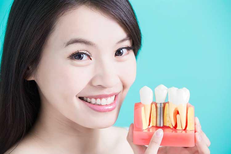 Dental Implants Pittsburgh